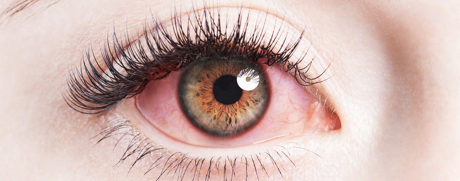 Frau mit Allergie an den Augen