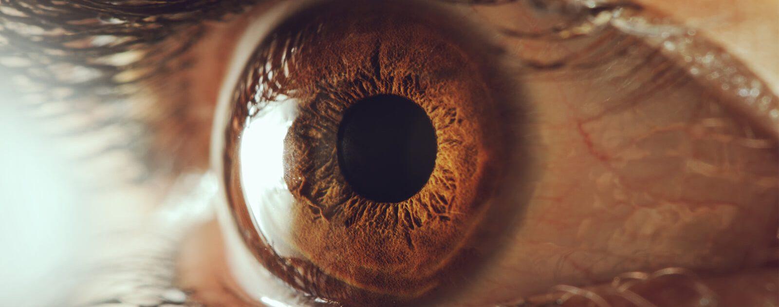 Auge mit Regenbogenhautentzündung.