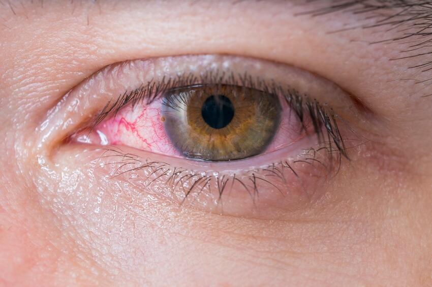 Gerötetes Auge mit Augengrippe: Adenovirus hat Auge infiziert.