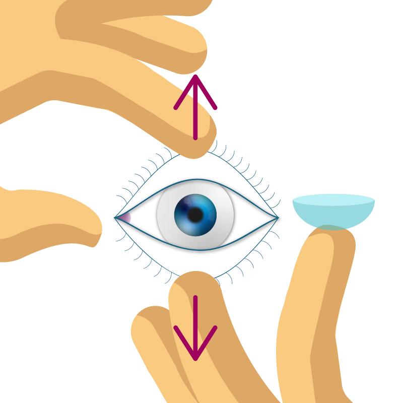 Kontaktlinsen einsetzen.