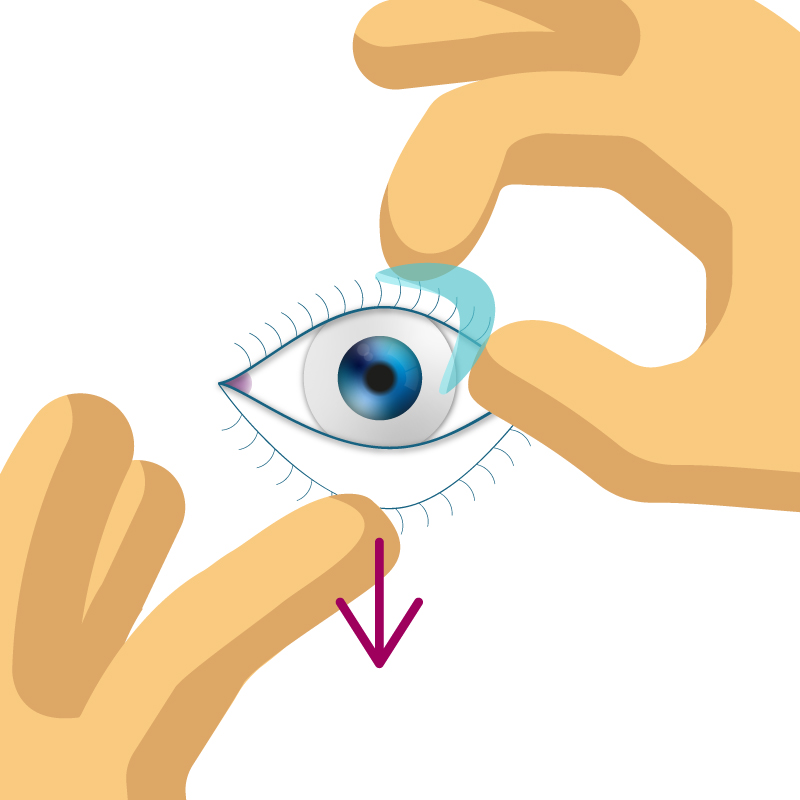 Kontaktlinsen entfernen.