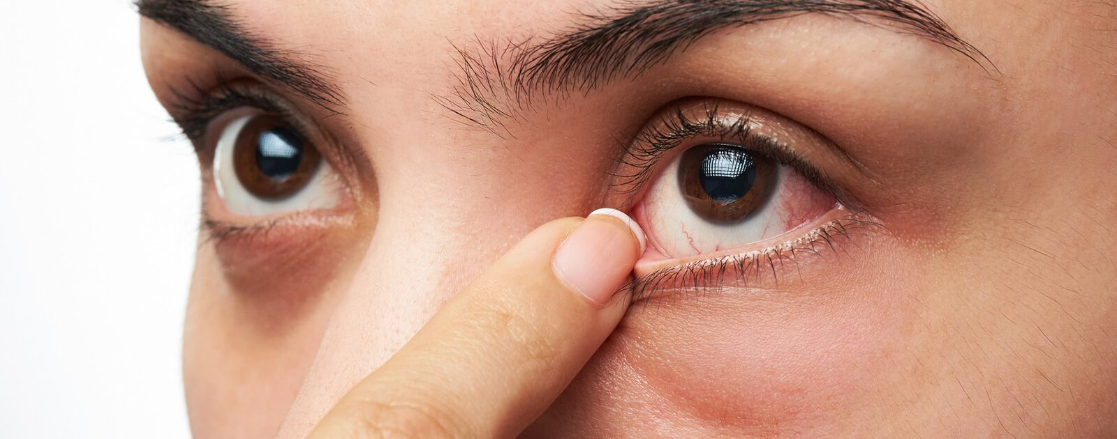 Sjögren-Syndrom: Frau mit geröteten Augen