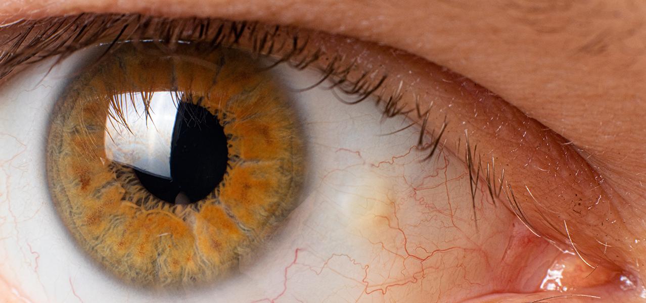 Auge mit Lidspaltenfleck im Augenweiß neben der Iris