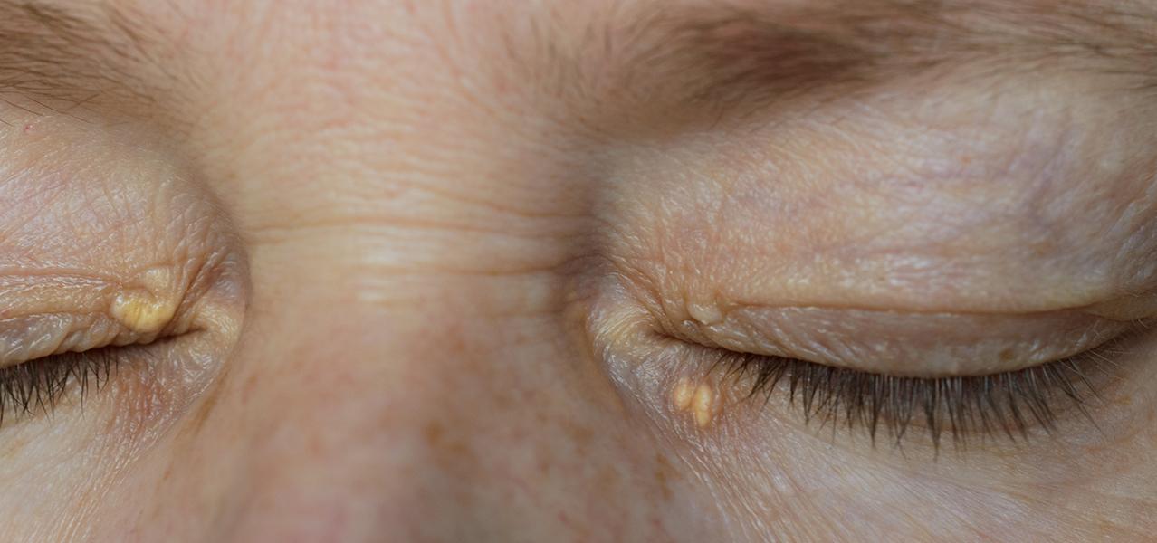 Eine Frau hat Xanthelasmen im Augenwinkel und unterhalb des Auges.