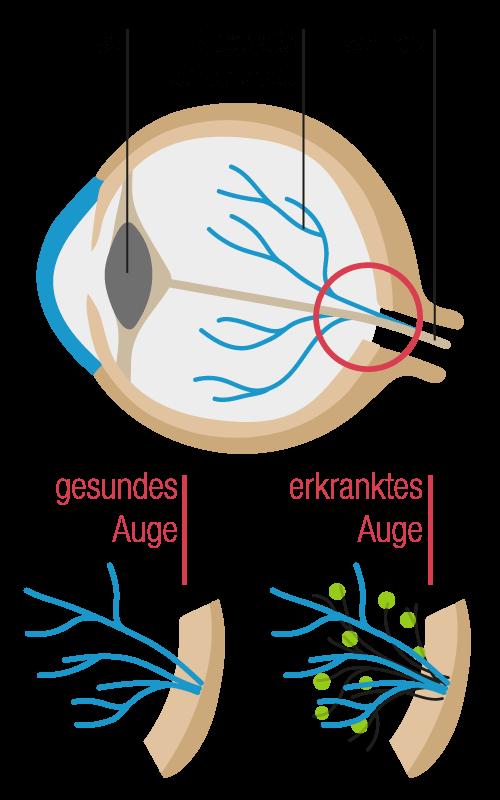 Grafik gesundes Auge im Vergleich zu einem erkrankten Auge mit diabetische Retinopathie